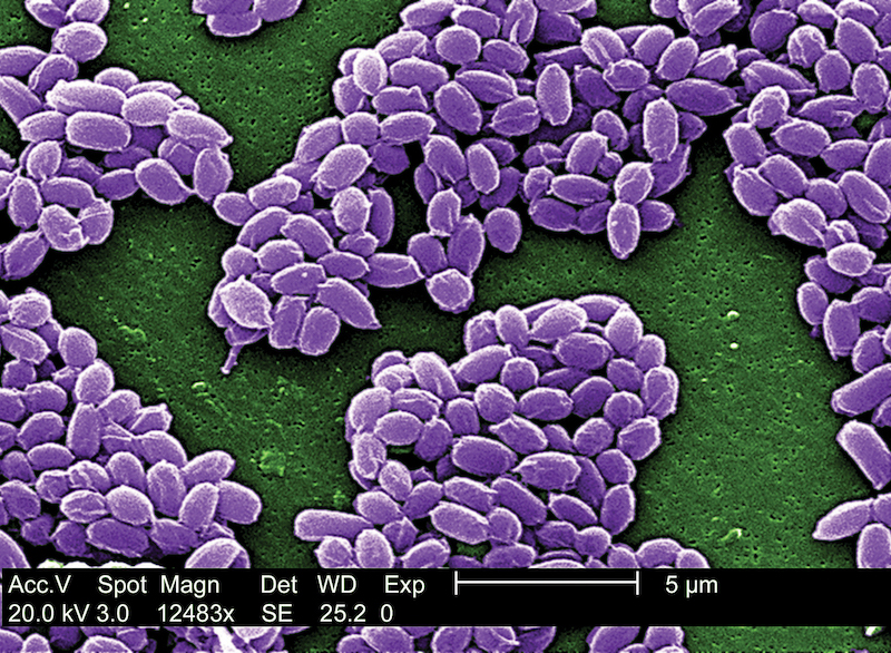 Anthrax under a microscope.